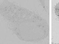 巧妙的技巧使电子显微镜成像速度提高20倍