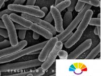 科学家发现细菌如何利用液态蛋白质液滴来克服压力